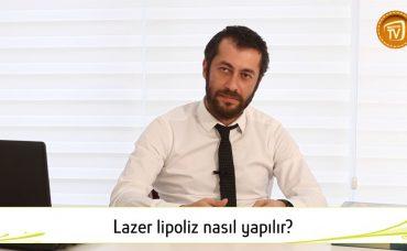 Lazer Lipoliz Nasıl Yapılır?